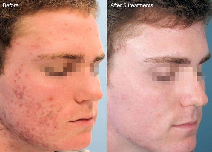 plastic surgery for clear skin photo - 1