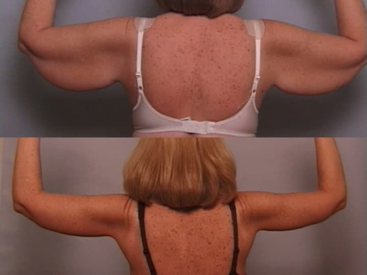 plastic surgery for arms cost photo - 1