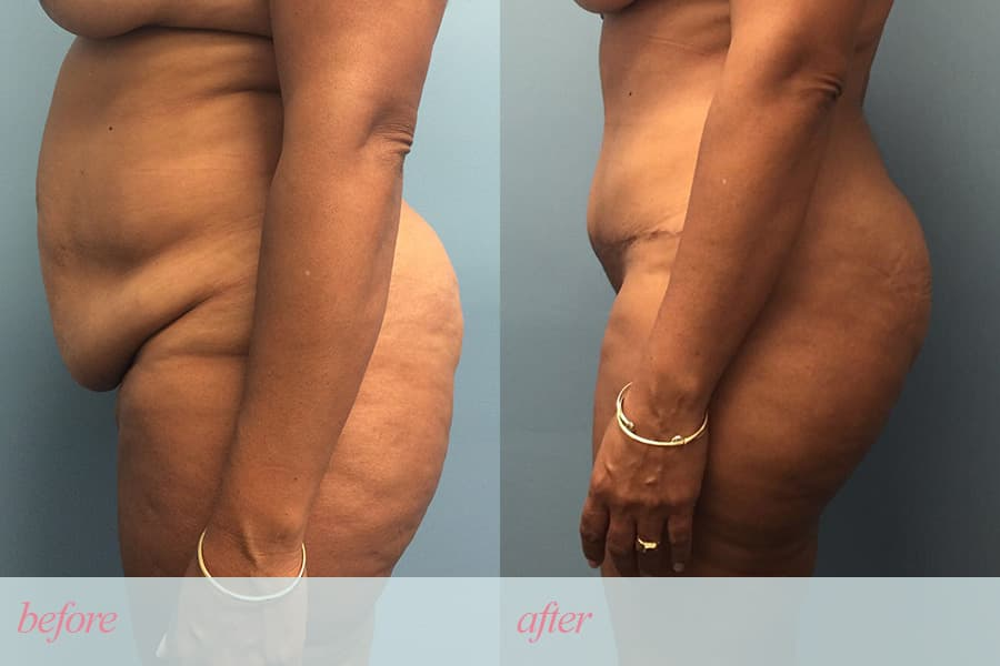 plastic surgery for tummy tuck prices photo - 1