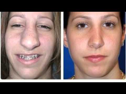 plastic surgery in new york prices photo - 1