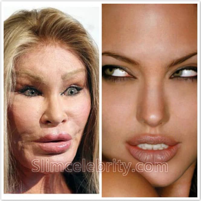 plastic surgery lips before after photo - 1