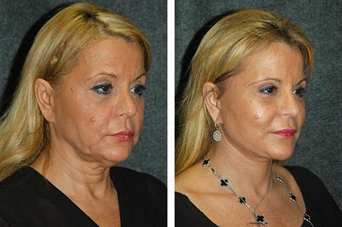 plastic surgery nyc cost photo - 1