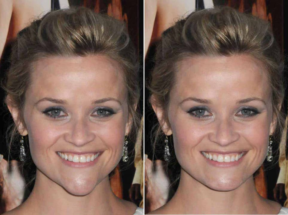 plastic surgery on chin before and after photo - 1
