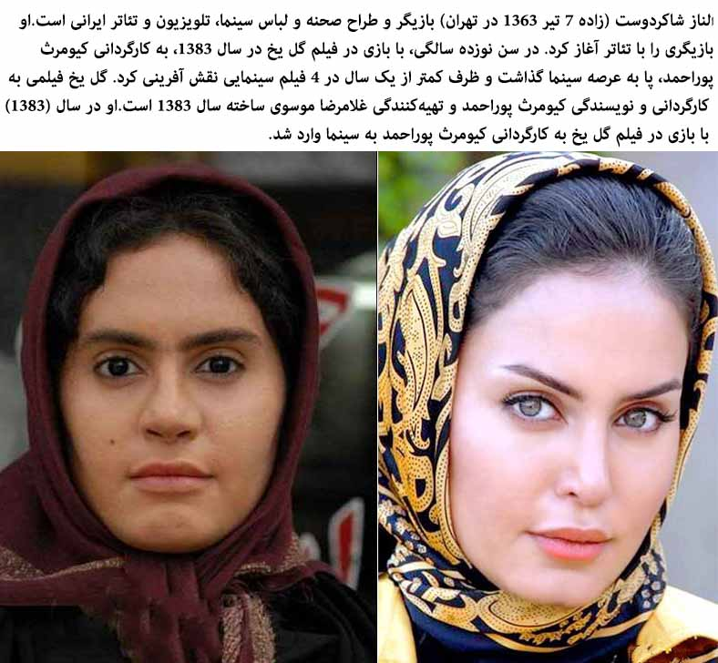Iranian Woman With Plastic Surgery Before And After Pictures 1