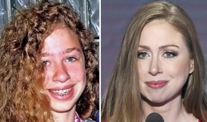 Pictures Of Chelsea Clinton Before And After Plastic Surgery 1