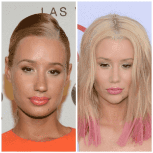 Celebrities Before And After Plastic Surgery Pictures 1
