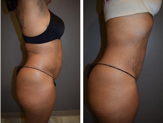How To Take Before And After Photos Guide For Plastic Surgery 1