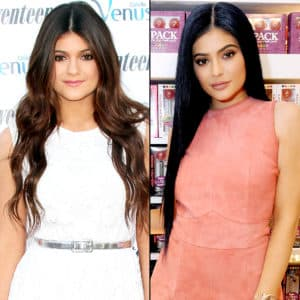 Kylie Jenner Before Plastic Surgery Before And Affter 1