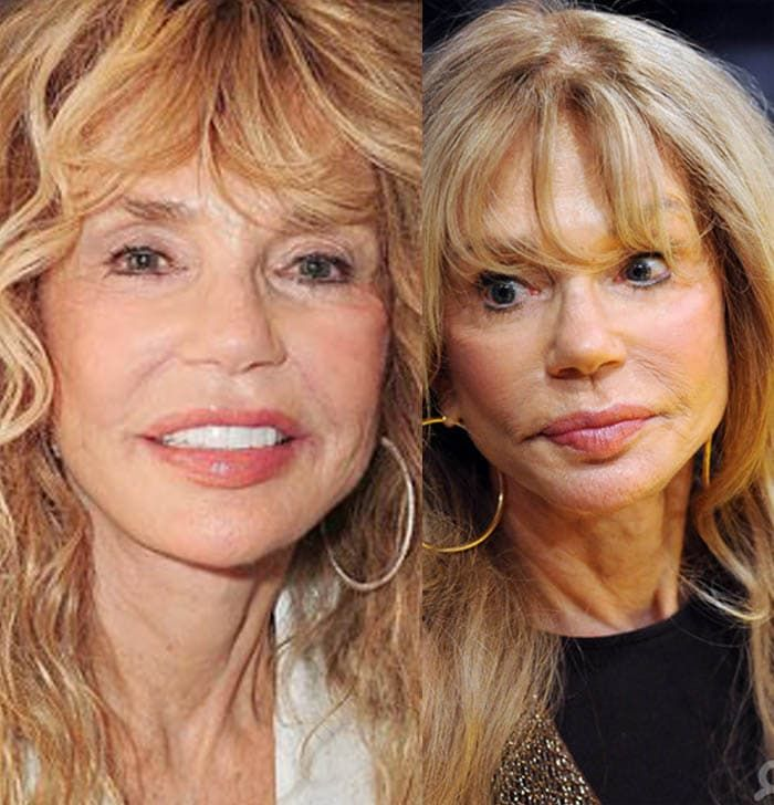 Recent Picture Of Goldie Hawn Before And After Plastic Surgery 1