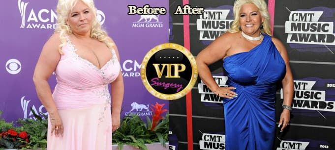 Alice Elizabeth Smith Plastic Surgery Before And After Pictures 1