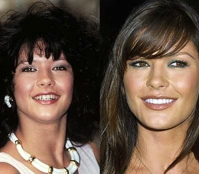 Photos Of Before And After Plastic Surgery Of Celebrities Teeth 1