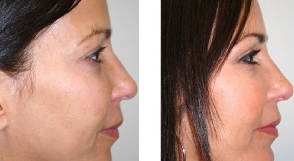 Do You Have To Stop Taking Low Dose Aspirin Before Plastic Surgery 1