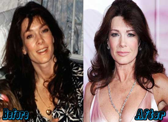 Taylor From Real Housewives Of Beverly Hills Before Plastic Surgery 1