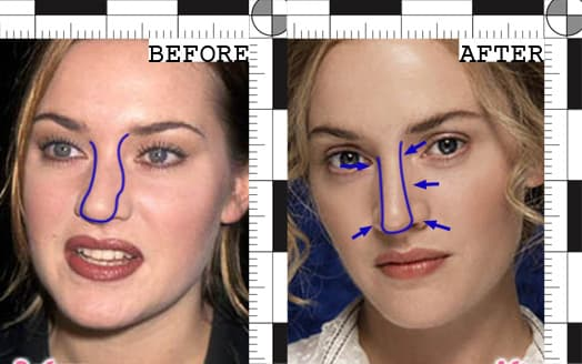 Kate Winslet Plastic Surgery And That Sucked Out Of The Face Before Now After 1