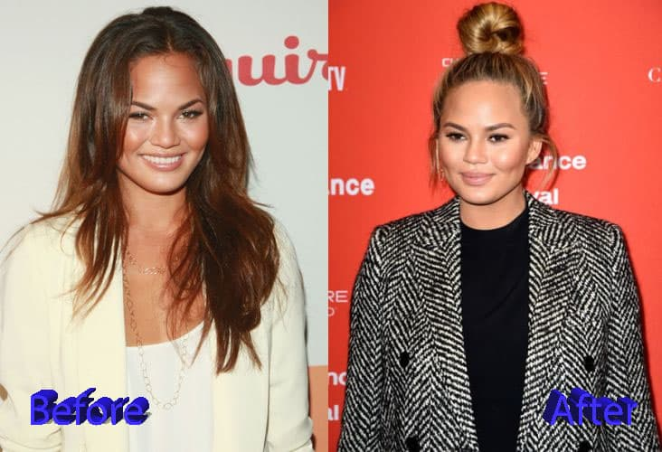 Before Plastic Surgery Pictures And After Plastic Surgery Pictureschrissy Teigen 1