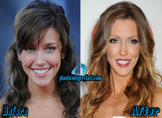 Plastic Surgery Fact Content Uploads 2015 Katie Cassidy Plastic Surgery Before After 1