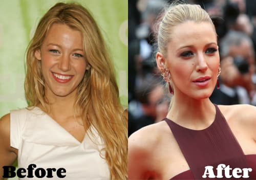 Blake Lively Before Plastic Surgery 1