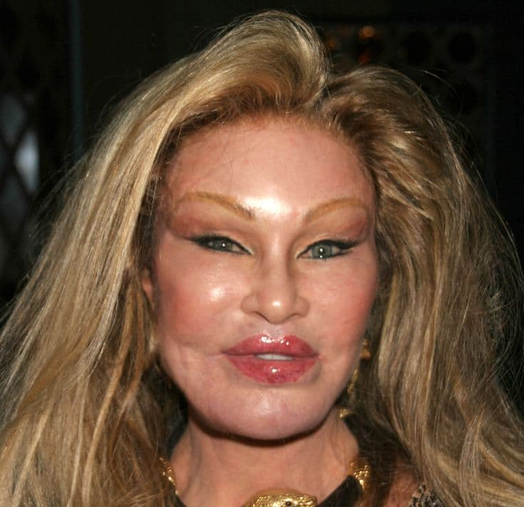 Cat Lady Plastic Surgery Before 1