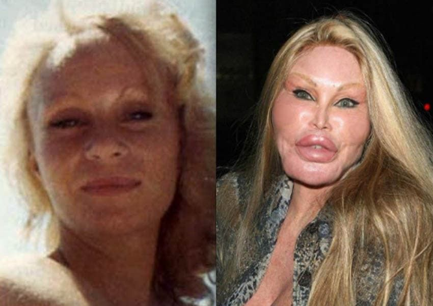 Catwoman Before Plastic Surgery 1