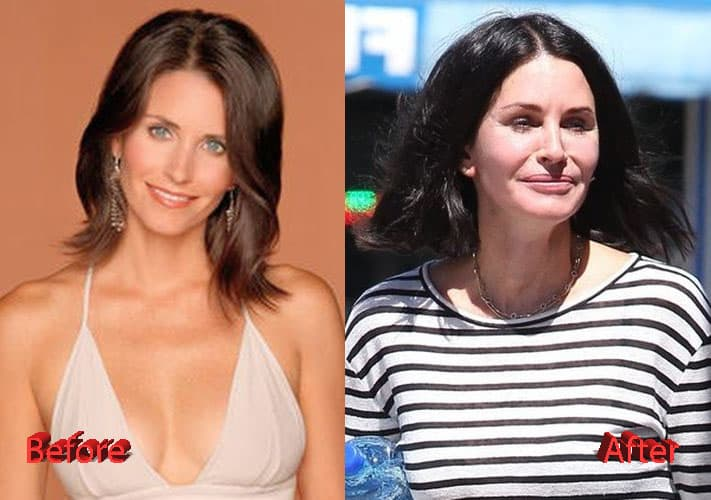 Courteney Cox Before Plastic Surgery 1