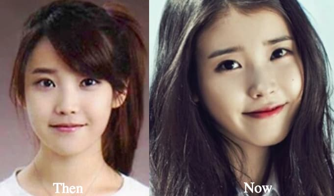 Iu Before And After Plastic Surgery 1