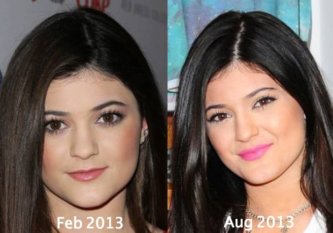Kylie Before Plastic Surgery 1