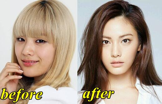 After School Before Plastic Surgery 1