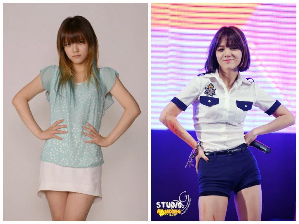 Aoa Plastic Surgery Before And After 1