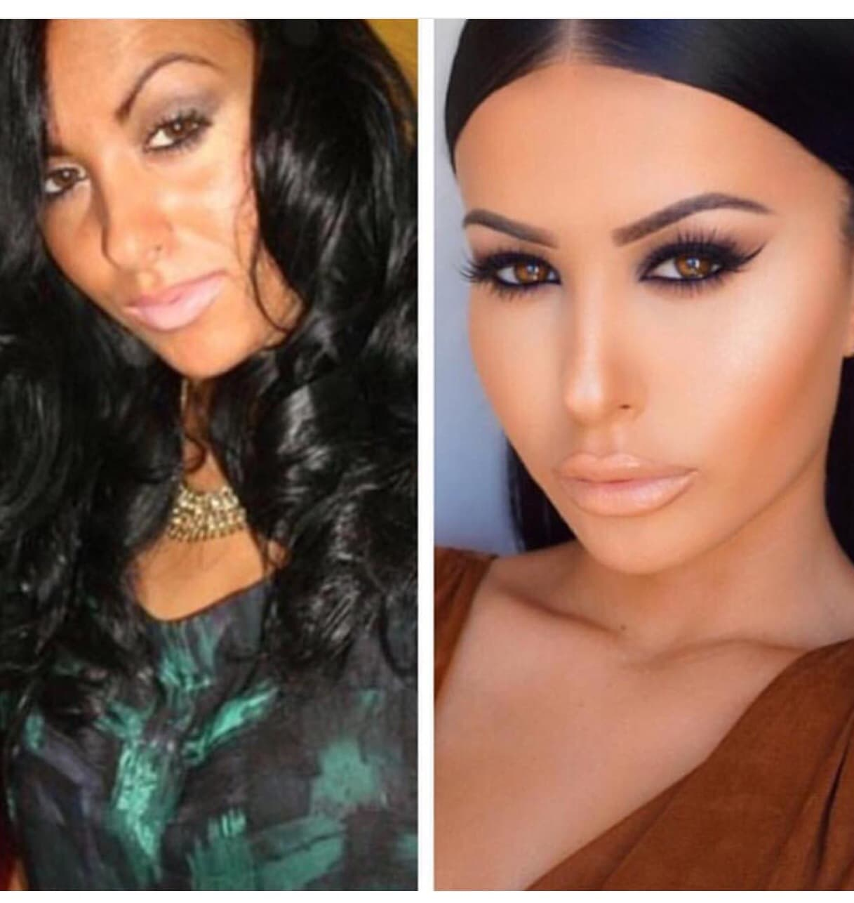 Amrezy Before Plastic Surgery 1