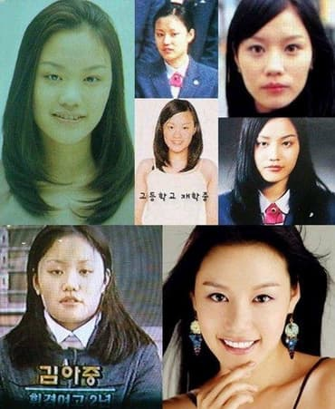 Before After Korean Plastic Surgery 1