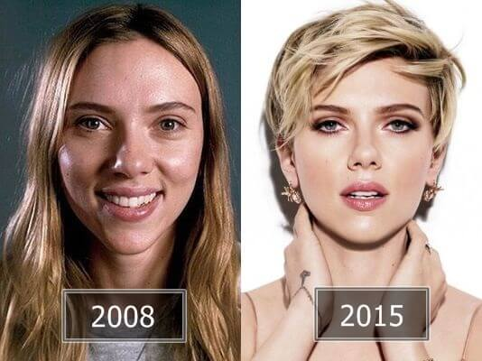 Celebs Before After Plastic Surgery 1