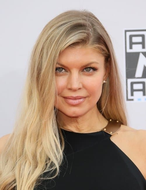 Fergie Plastic Surgery Before After 1