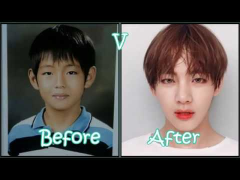 Iu Plastic Surgery Before And After 1