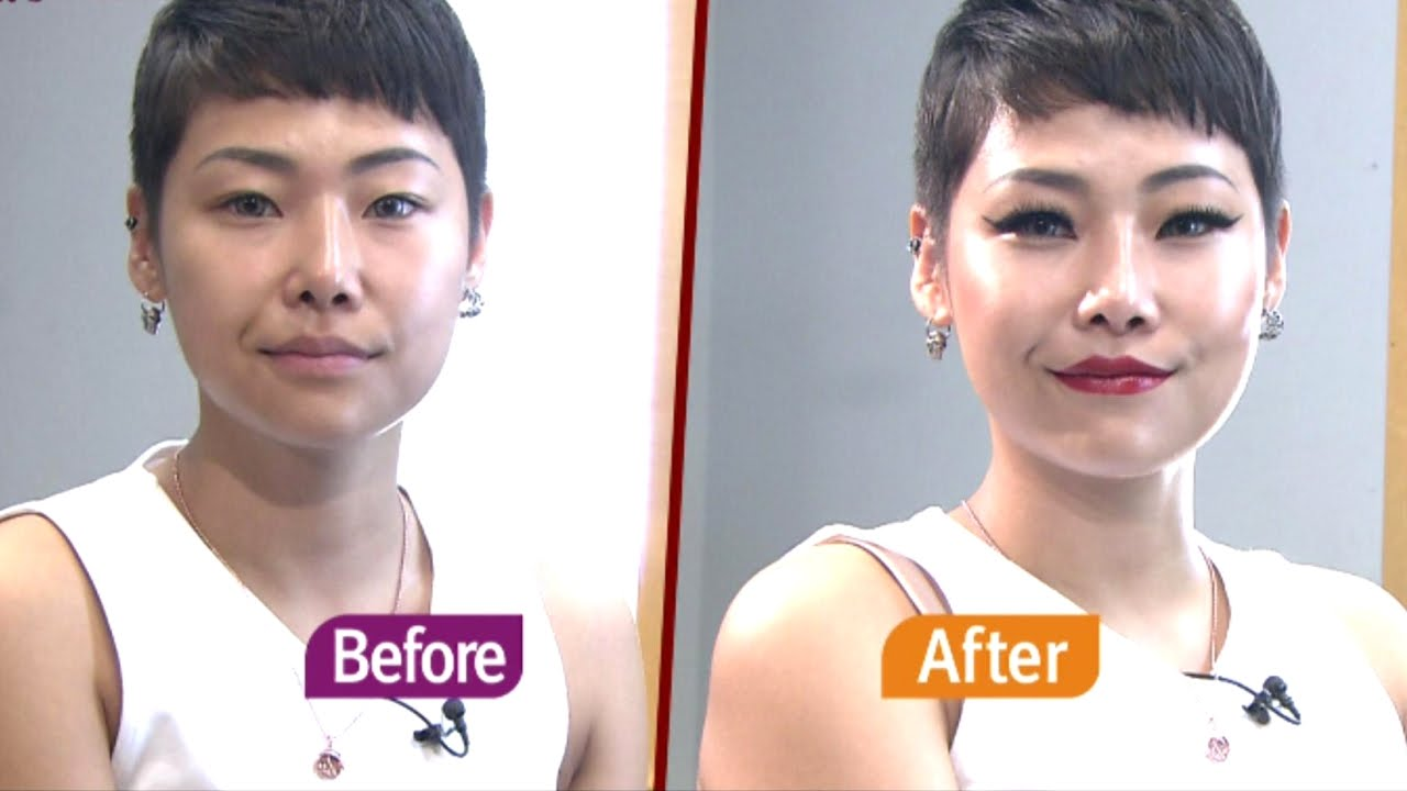 Jessi Before After Plastic Surgery 1
