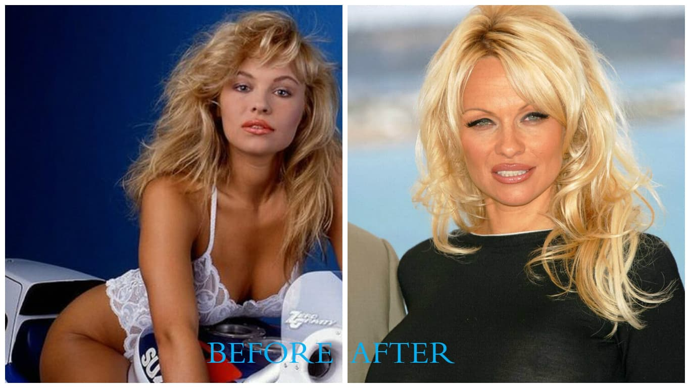 Pam Anderson Before Plastic Surgery 1