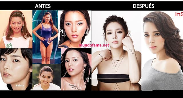 Park Si Yeon Before Plastic Surgery 1