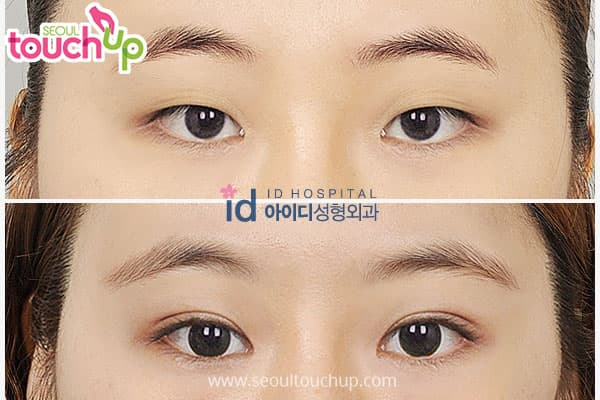 Plastic Surgery Kpop Before After 1