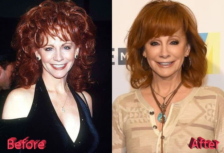 Reba Before Plastic Surgery 1
