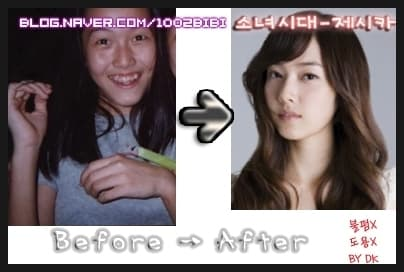 Snsd Jessica Before Plastic Surgery 1
