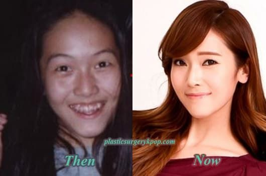Sunny Snsd Before Plastic Surgery 1