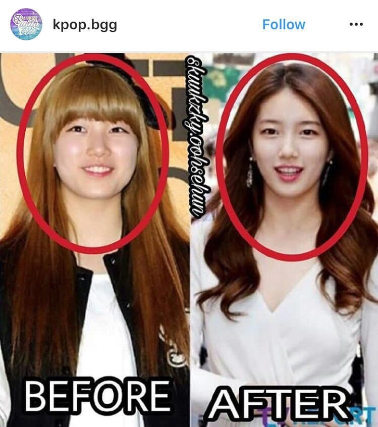 Suzy Before Plastic Surgery 1