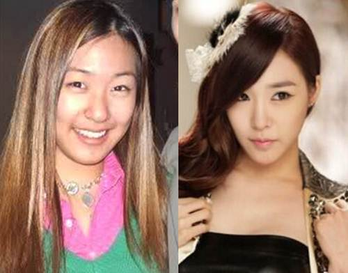Tiffany Before Plastic Surgery 1