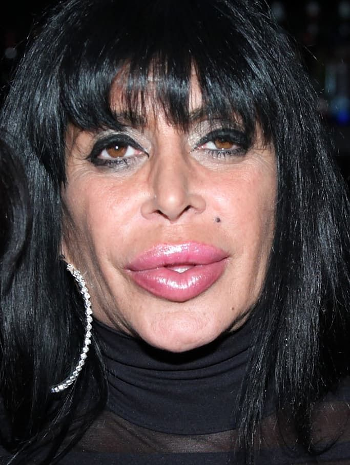 Big Angela Before Plastic Surgery 1