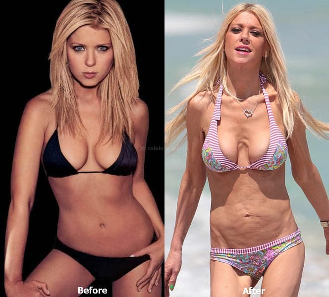 Celeb Plastic Surgery Before After 1