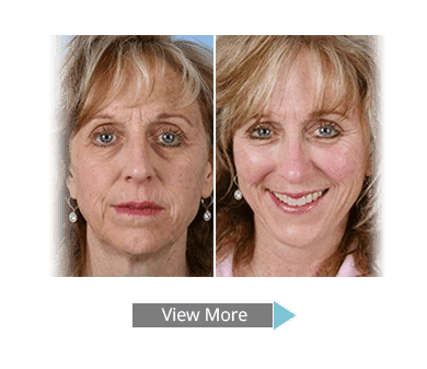 Facial Plastic Surgery Before After 1