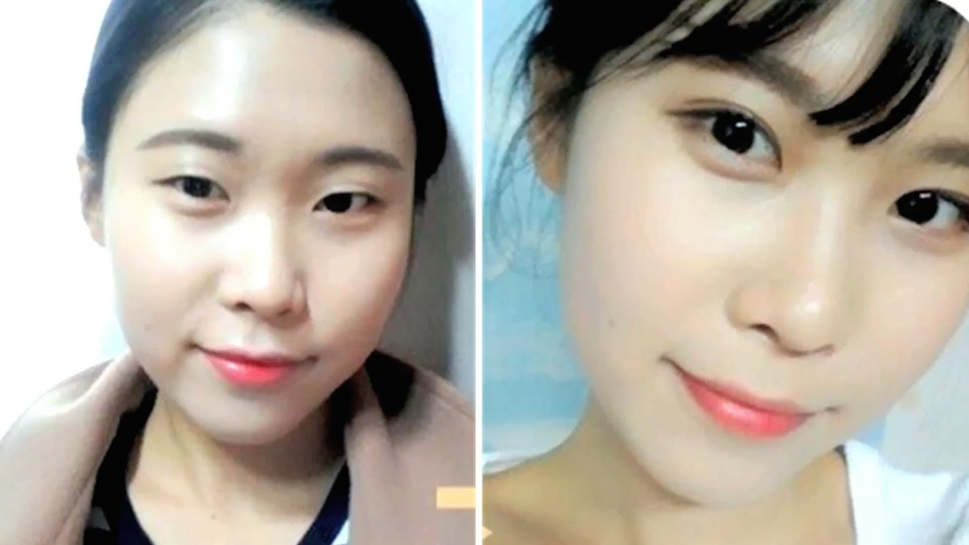 Korea Before After Plastic Surgery 1