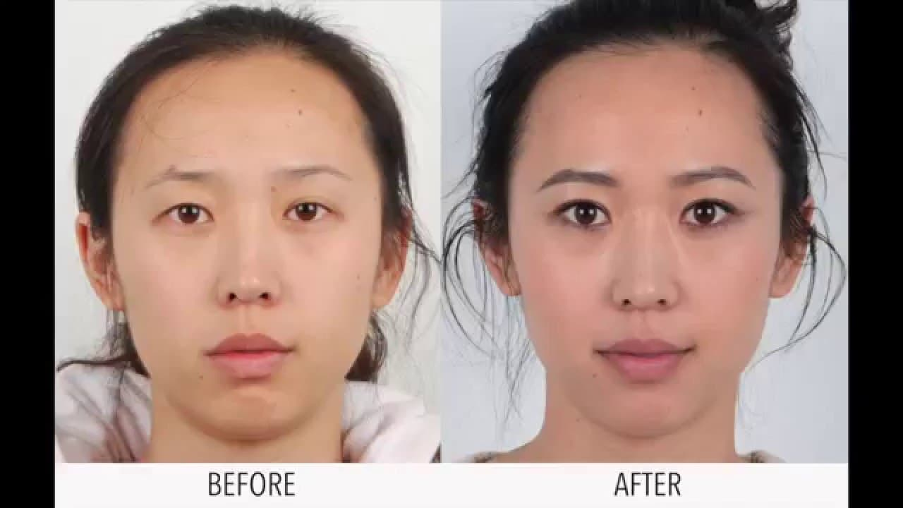 Women Plastic Surgery Before After 1