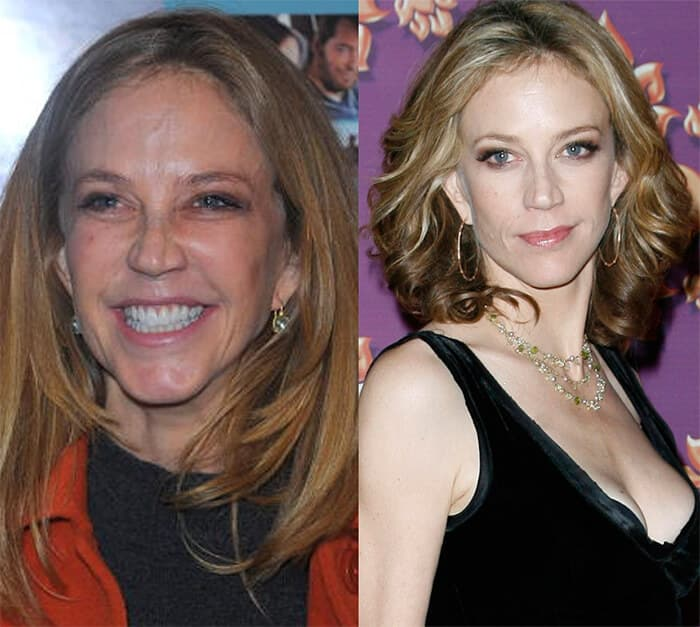 Ally Walker Before Plastic Surgery 1