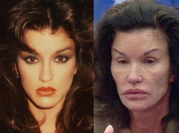 Before And Face Plastic Surgery 1