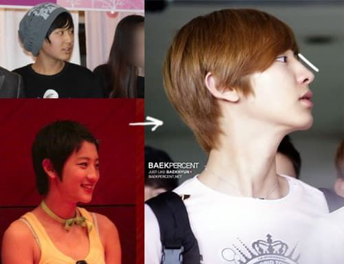 Chanyeol Before Plastic Surgery 1